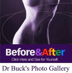 Buck photo gallery