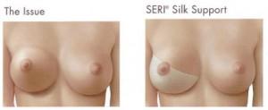 silk-image6