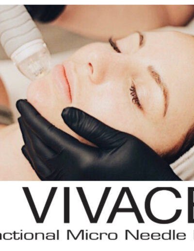 The Vicace Experience